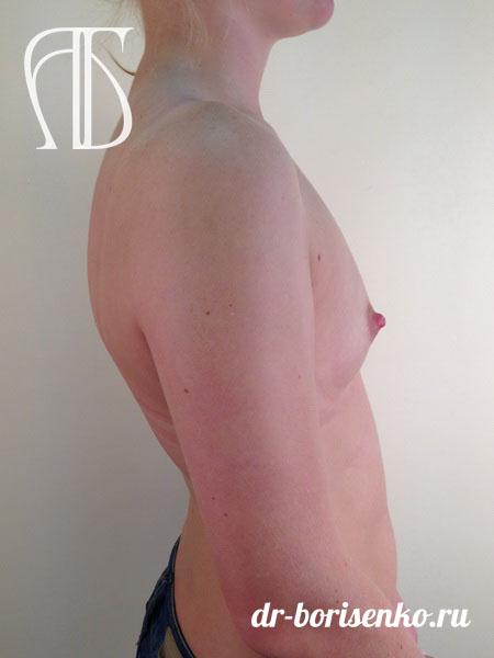 увеличение груди анатомическими имплантами фото до