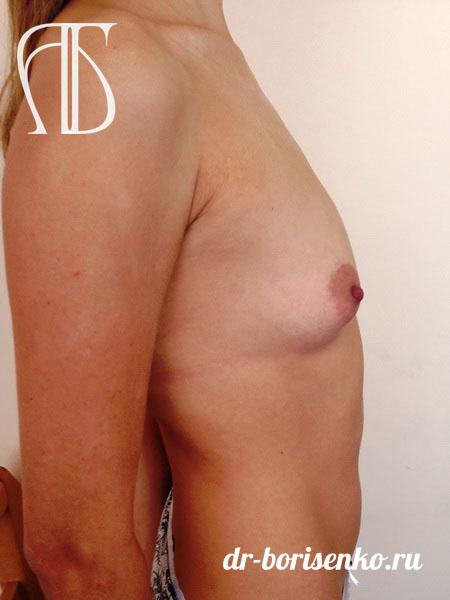 увеличение груди с 0 размера до
