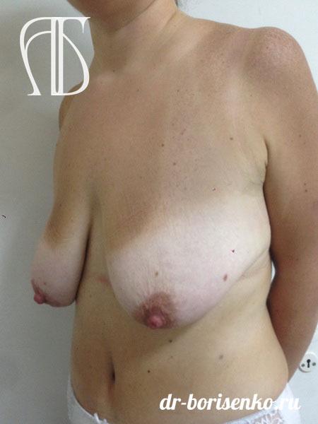 уменьшение груди москва до