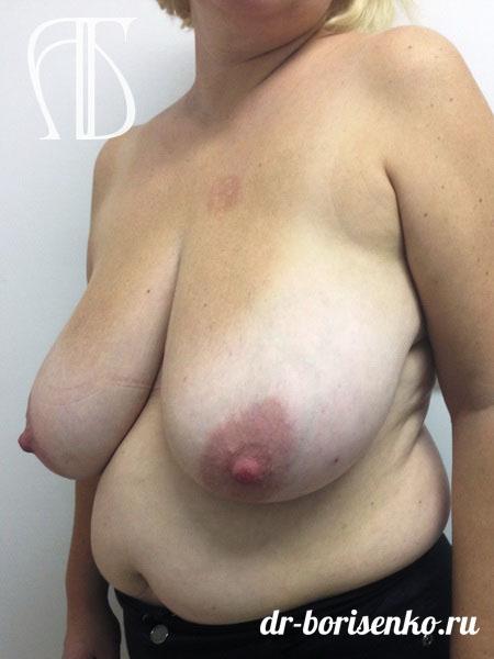 грудь до редукции
