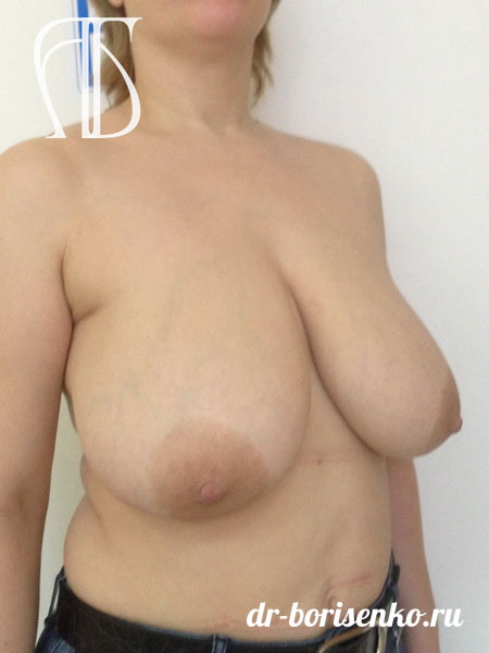 уменьшение грудных желез до