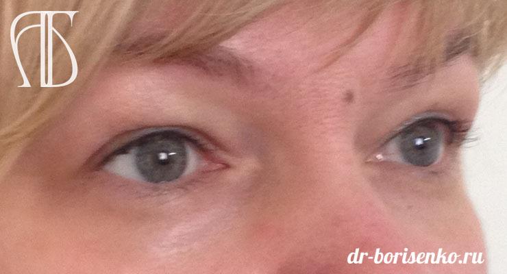 блефаропластика под глазами до