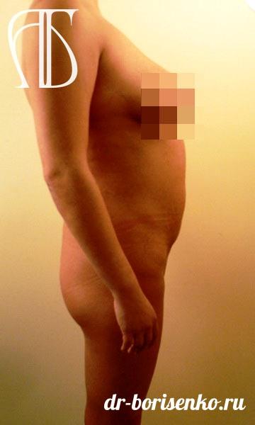 Абдоминопластика фото до