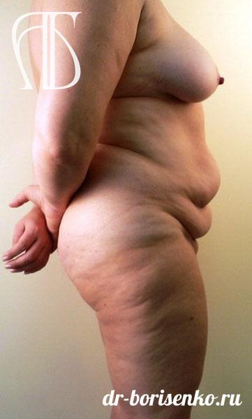 липосакция и абдоминопластика до