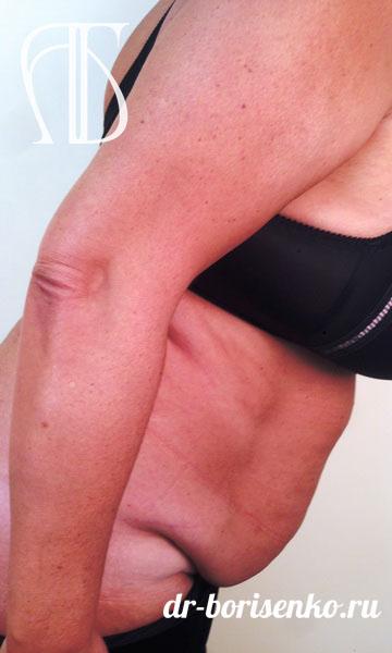 операция по удалению лишней кожи на животе до