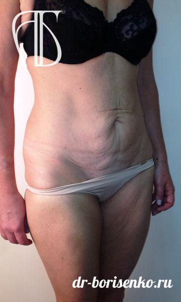 пластическая операция на живот после родов до
