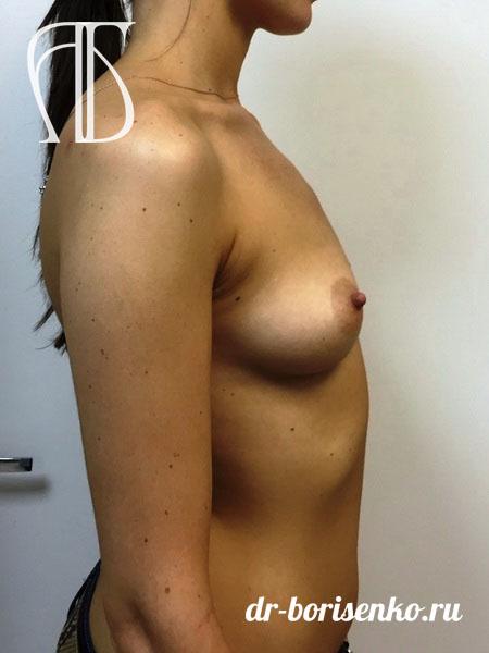 увеличение груди фото до