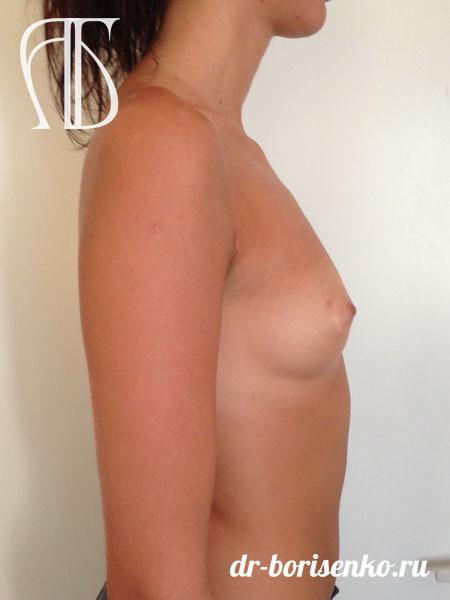 увеличение груди пластика до