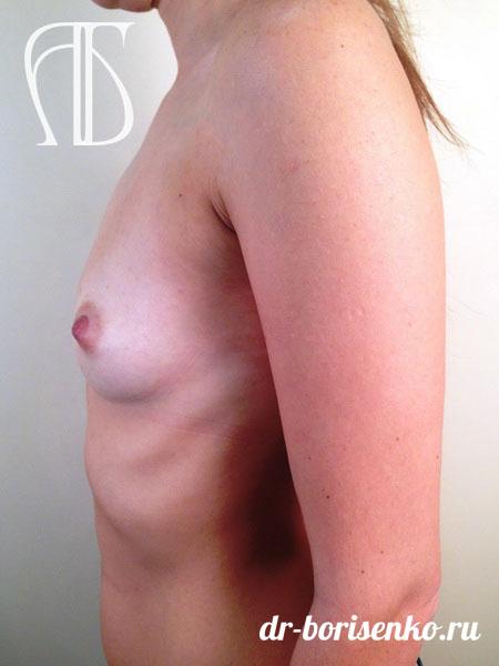операция по увеличению груди фото до