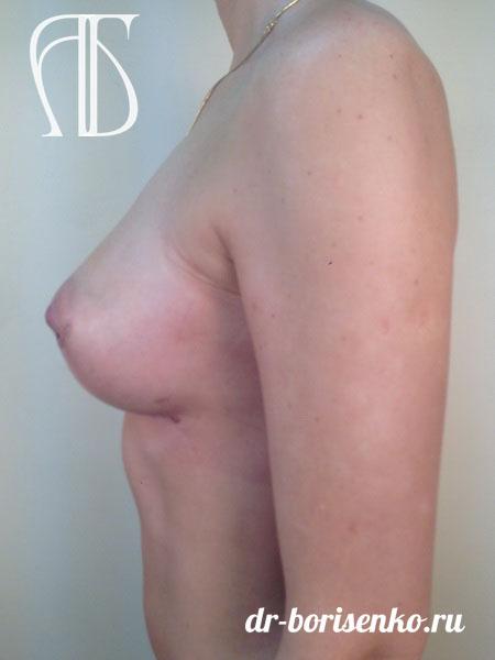 увеличение груди на 1 размер после