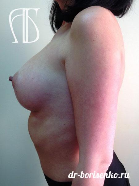 увеличение груди до 3 размера после