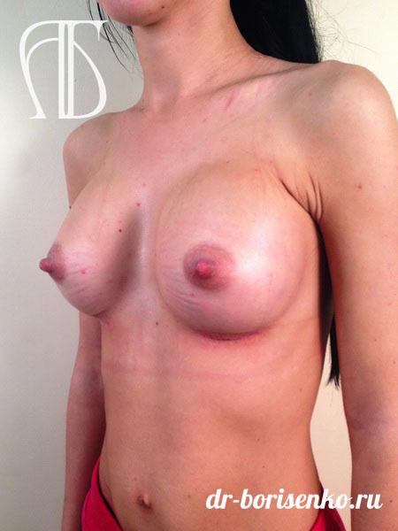 клиники пластической хирургии увеличение груди после