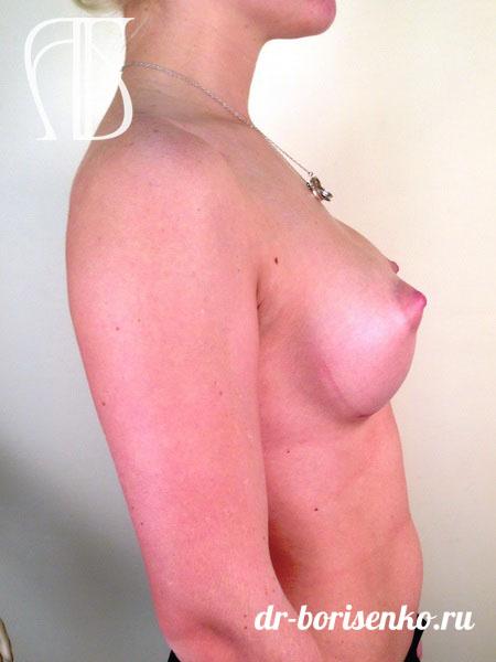 увеличение груди анатомическими имплантами фото после
