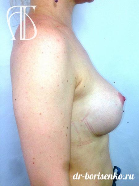 новая клиника увеличение груди после