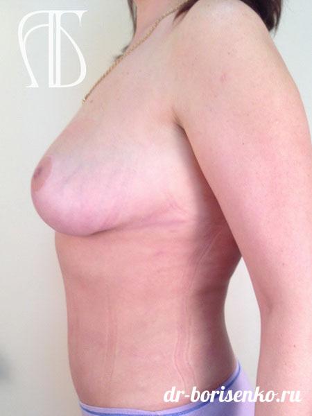 уменьшение груди фото после