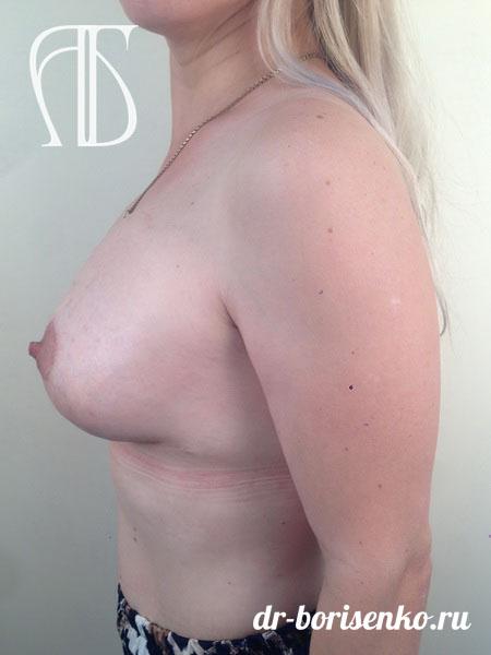 уменьшение объема груди после