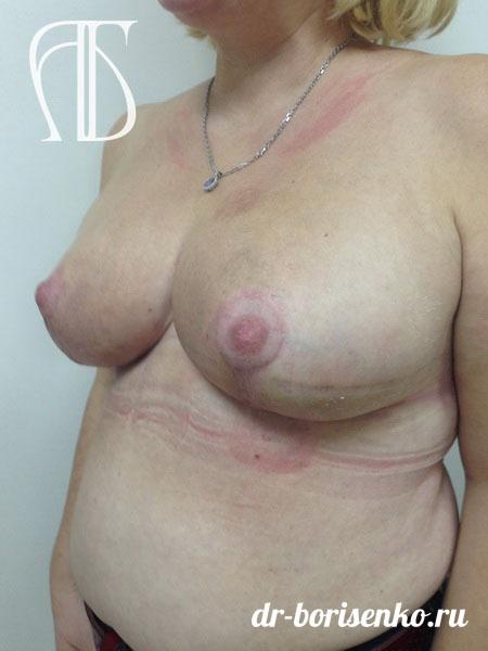 грудь после редукции