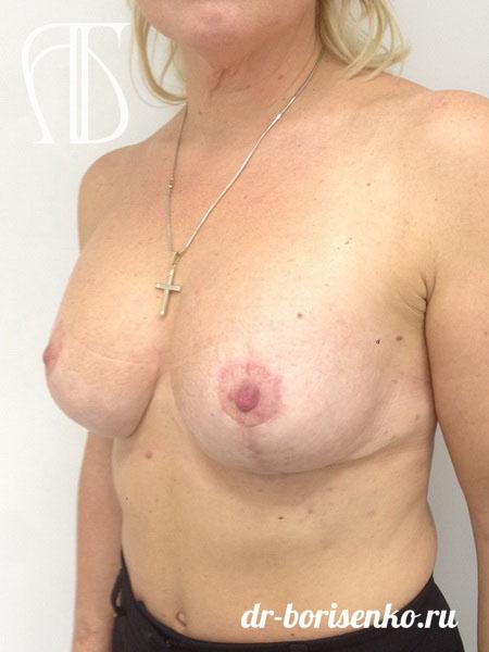 подтяжка груди нитями после