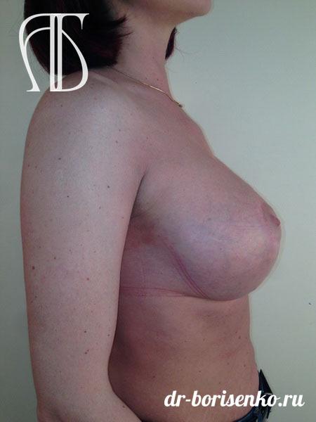 вертикальная подтяжка молочных желез фото после