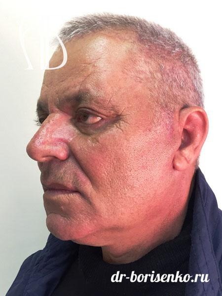 Подтяжка лица у мужчин после