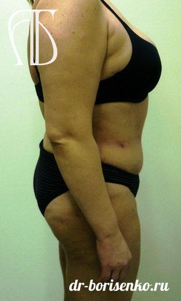 липосакция и абдоминопластика после