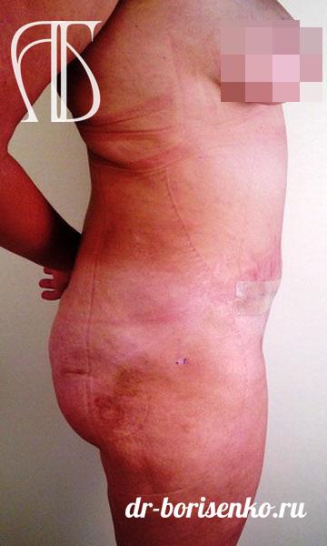 абдоминопластика фото операции после