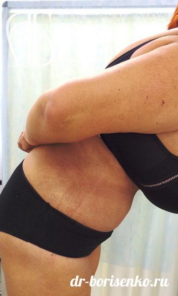 операция по удалению лишней кожи на животе после