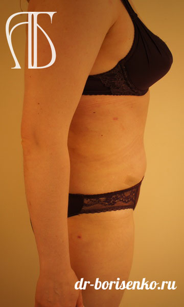 убрать лишнюю кожу с живота операция после