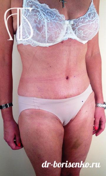 пластическая операция на живот после родов после