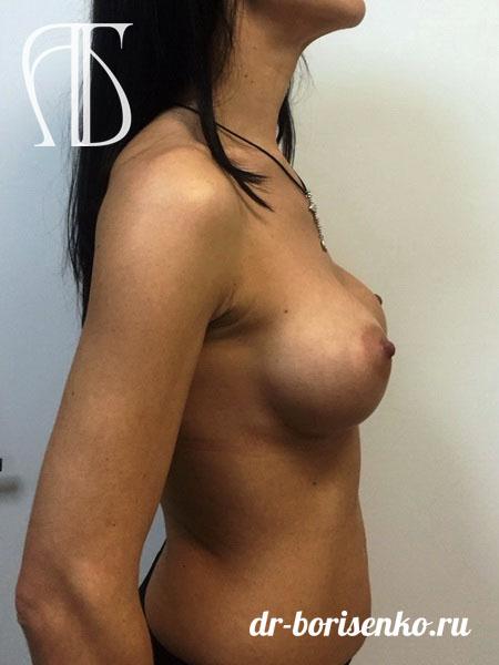 увеличение груди фото после