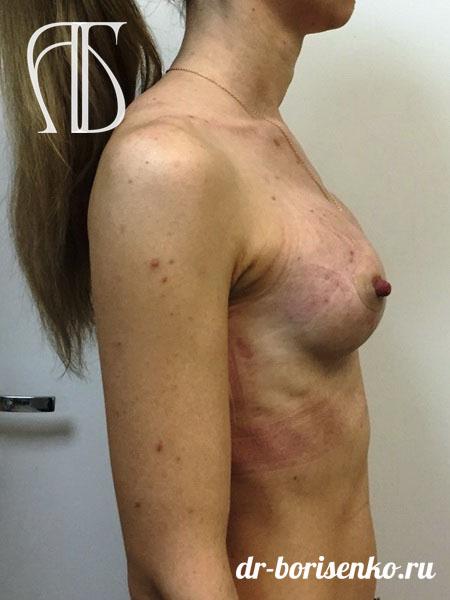 увеличение груди имплантами после