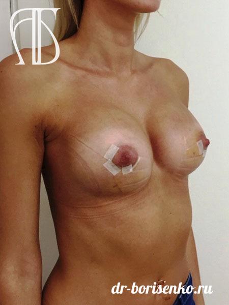 2 увеличение груди после