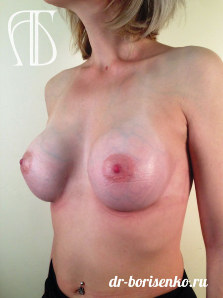 увеличение груди 2015 после