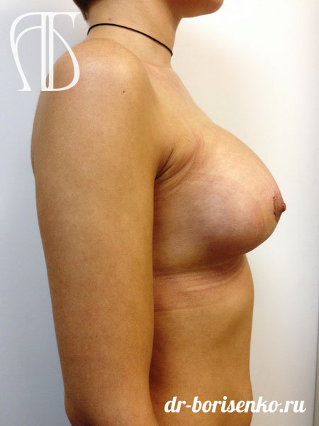 увеличение груди круглые до
