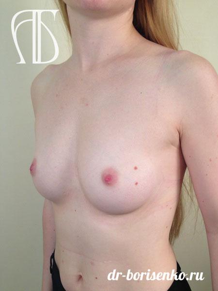 хирургические способы увеличения груди до
