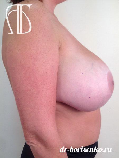 уменьшение размера груди до