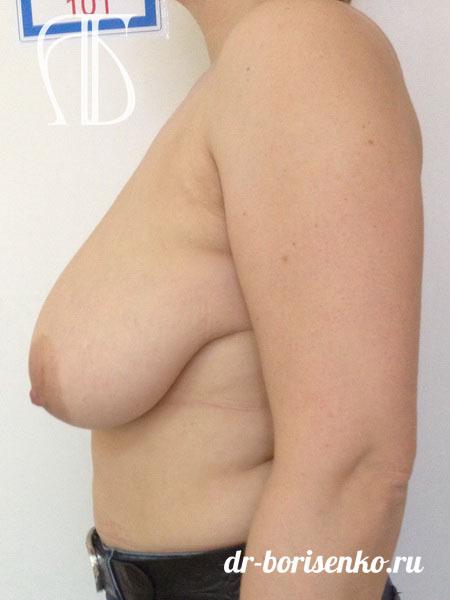 уменьшение грудных желез фото до