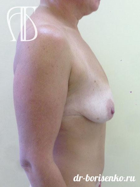 операция по подтяжке груди до
