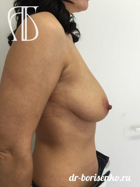 клиника подтяжка груди до