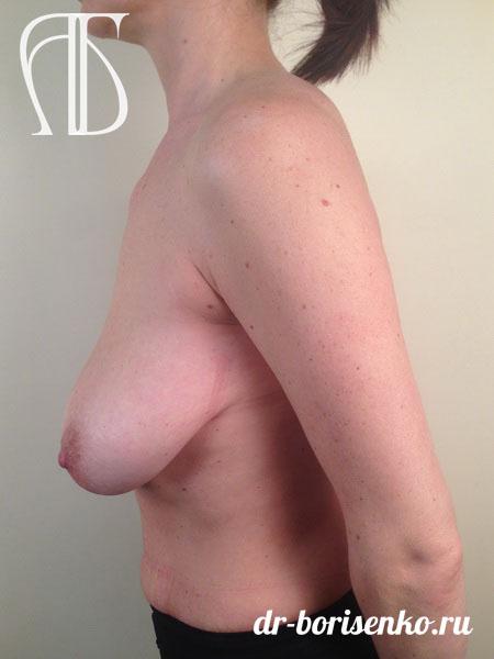 подтяжка груди с вертикальным рубцом до