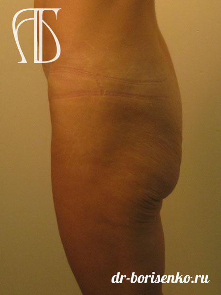 увеличение ягодиц фото до операции