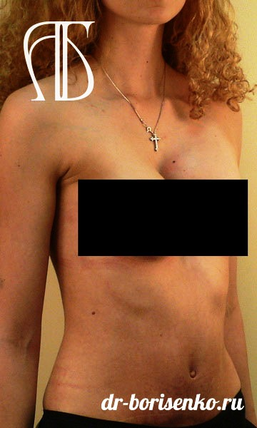 абдоминопластика с переносом пупка после