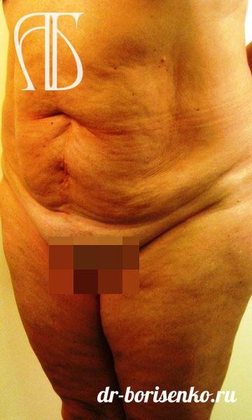 абдоминопластика где сделать до