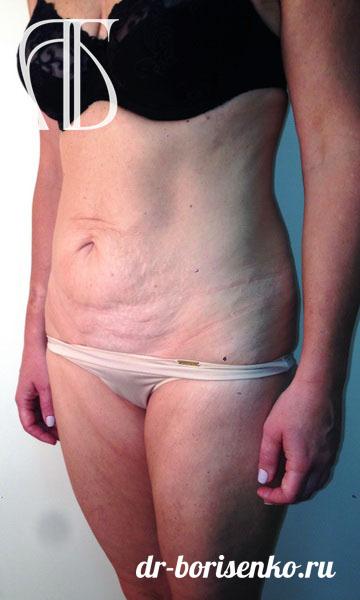 абдоминопластика после родов до