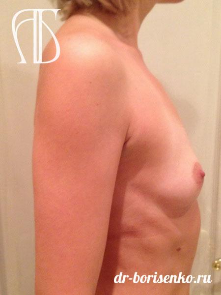 пластическая хирургия увеличение груди до