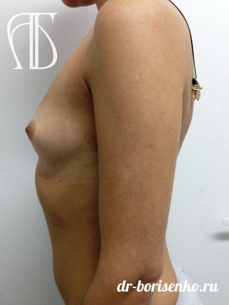 увеличение груди имплантанты до