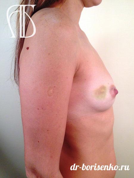 увеличение груди круглыми имплантами до
