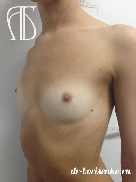 увеличение груди имплантами фото до