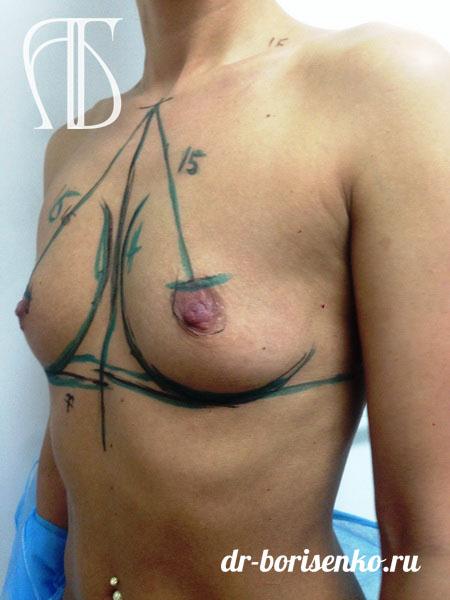 увеличение груди с помощью имплантов