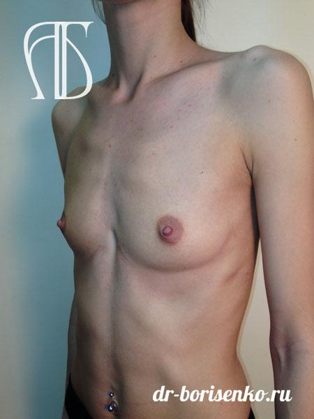 фото увеличения груди 3 размера до